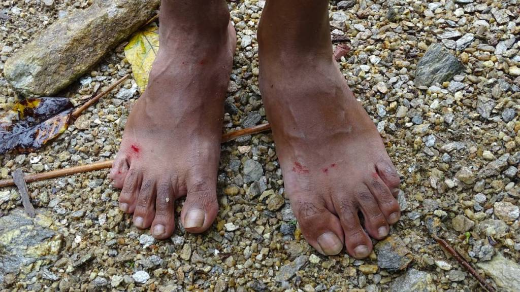 Bare feet covered with tiny, bleeding wounds made by removing the leeches